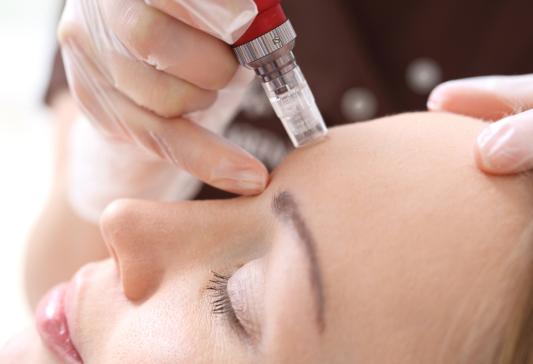 Falten, Falten weg, gegen Falten, Micro needling, Stammzellen, Hautalterung, Lifting, Gesicht, Aknebehandlung, Narbenbehandlung